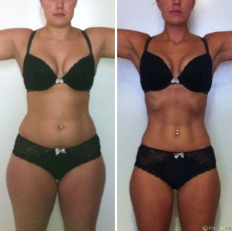freezefat.org - before and after successful cool sculpting treatment