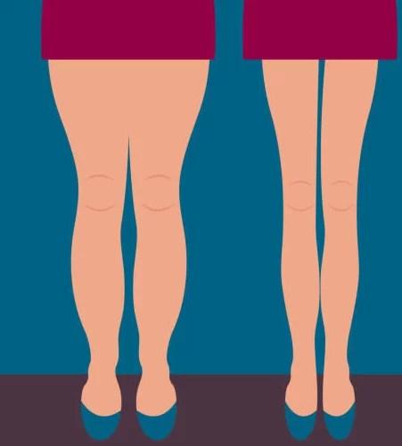 バレエと食事管理でリバウンドしないで美しく痩せるメカニズム