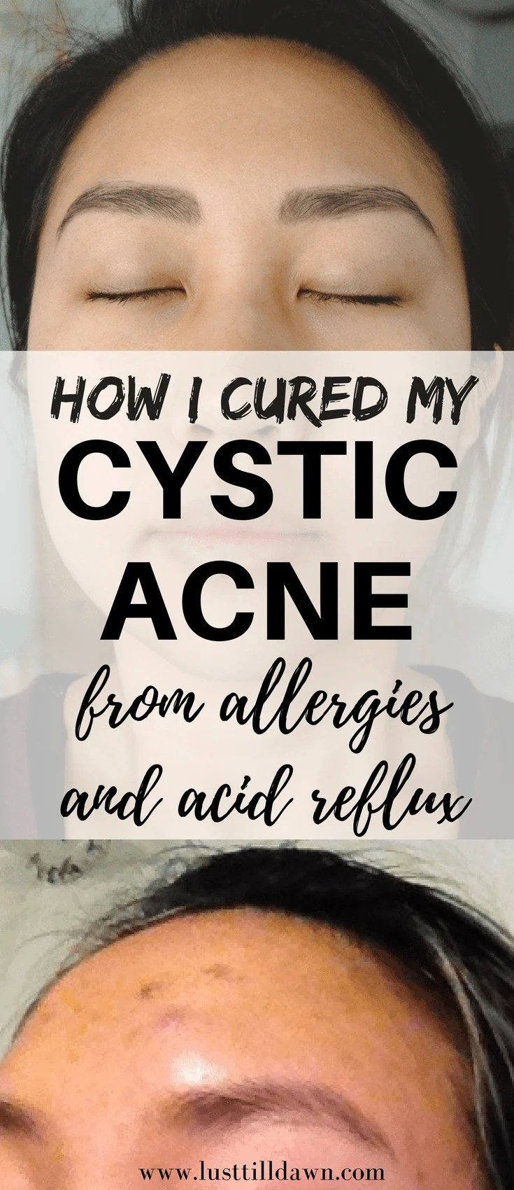 I finally cured 5 years of cystic acne by discovering food allergies and healing my acid reflux. Check out my post on my difficulty on curing my acne, what I tried and didn't work, how I finally healed my acid reflux from food allergies and acid reflux, and my daily skin care routine. Before and after photos included!