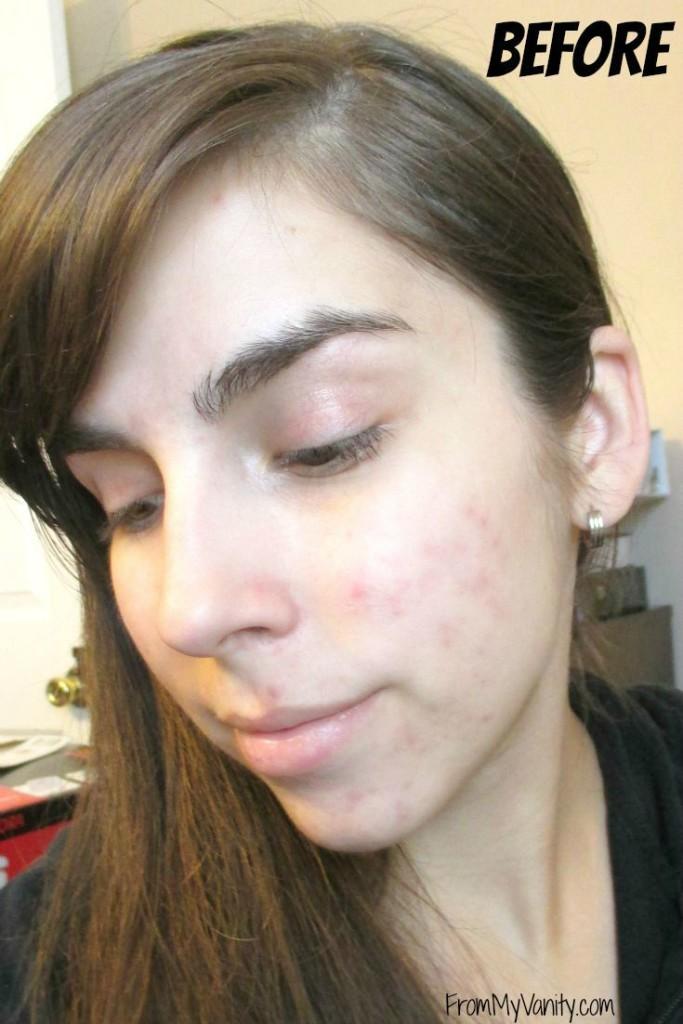 influenster-ysl-touch-eclat-blur-beforepics