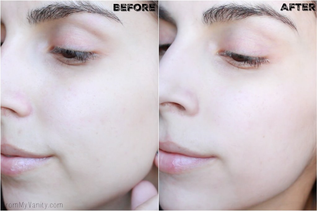 5 Benefits I Experienced from Using My PMD   Personal MicroDerm   Before/After Results   Left Side