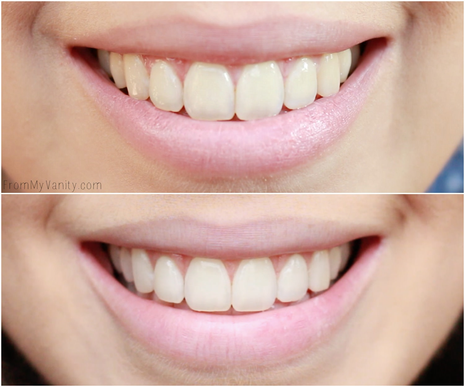 Achieve Whiter Teeth Naturally With Tom S Of Maine From