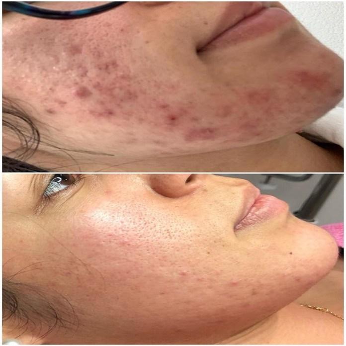 acné mascarillas