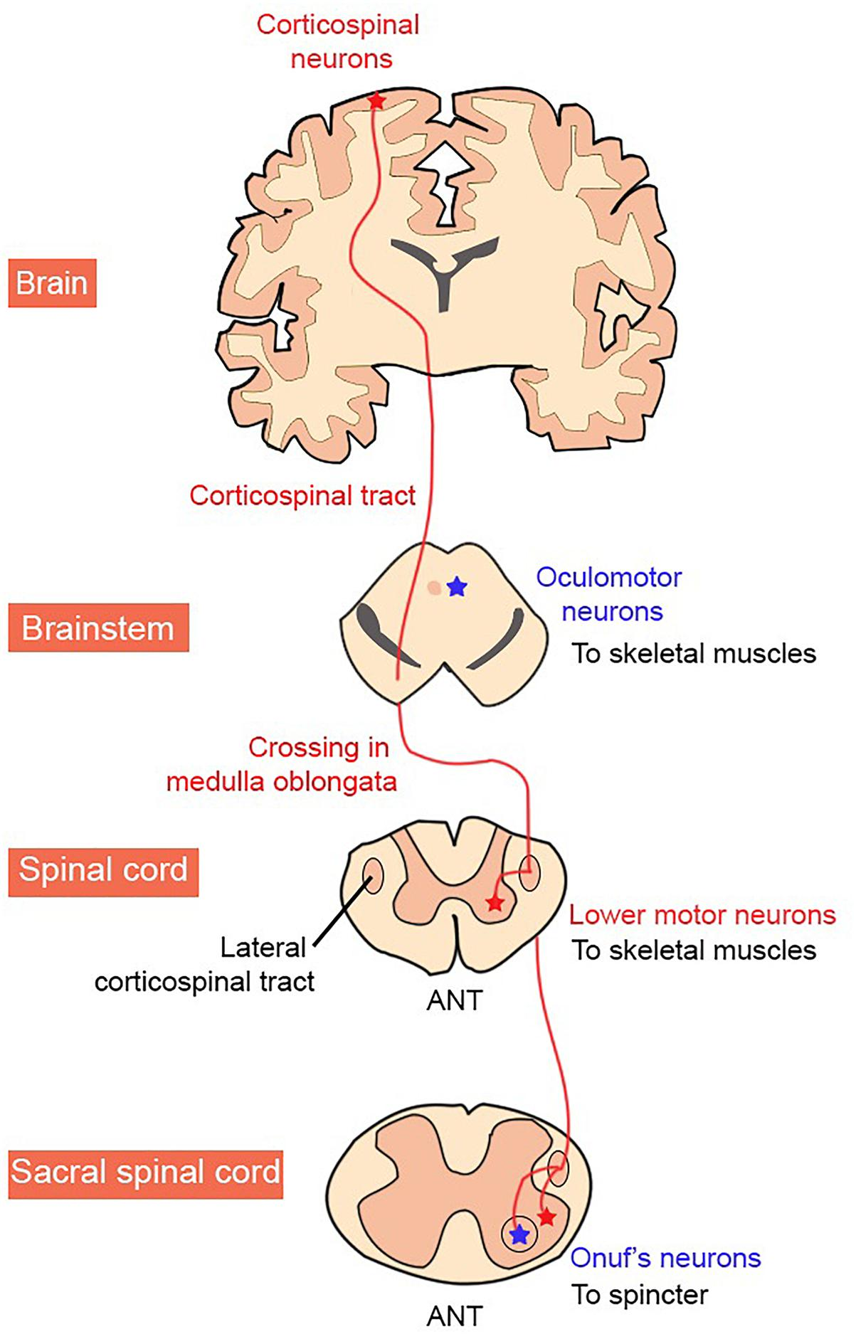 Lower Motor Neuron 7th Nerve Palsy