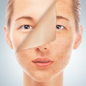 dry skin beauty evolution skin peel
