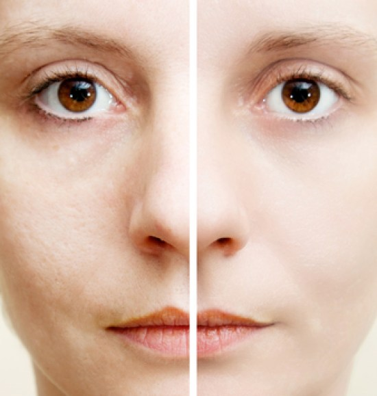 How to tighten pores