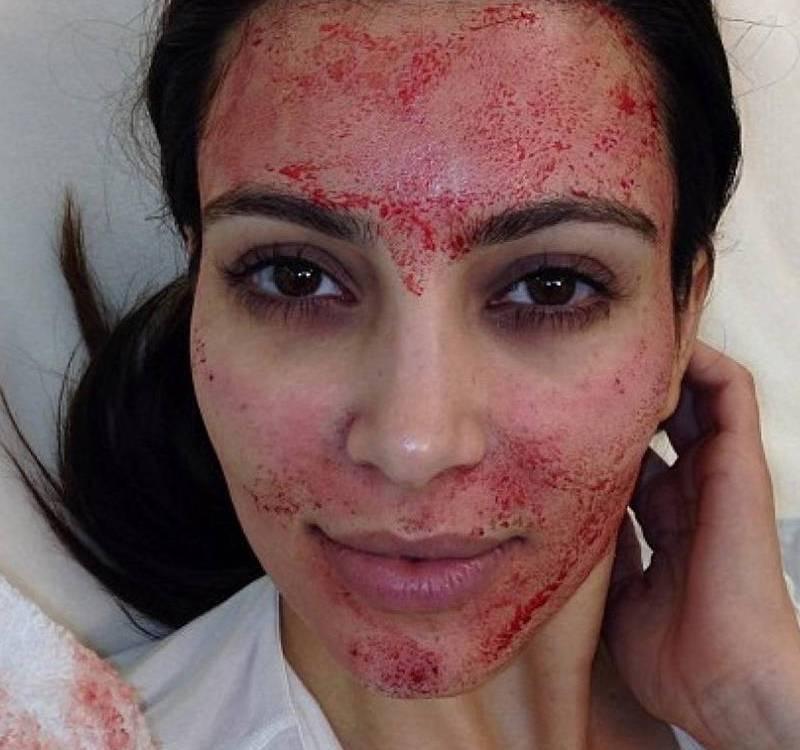 Kim Kardashian vampire facial
