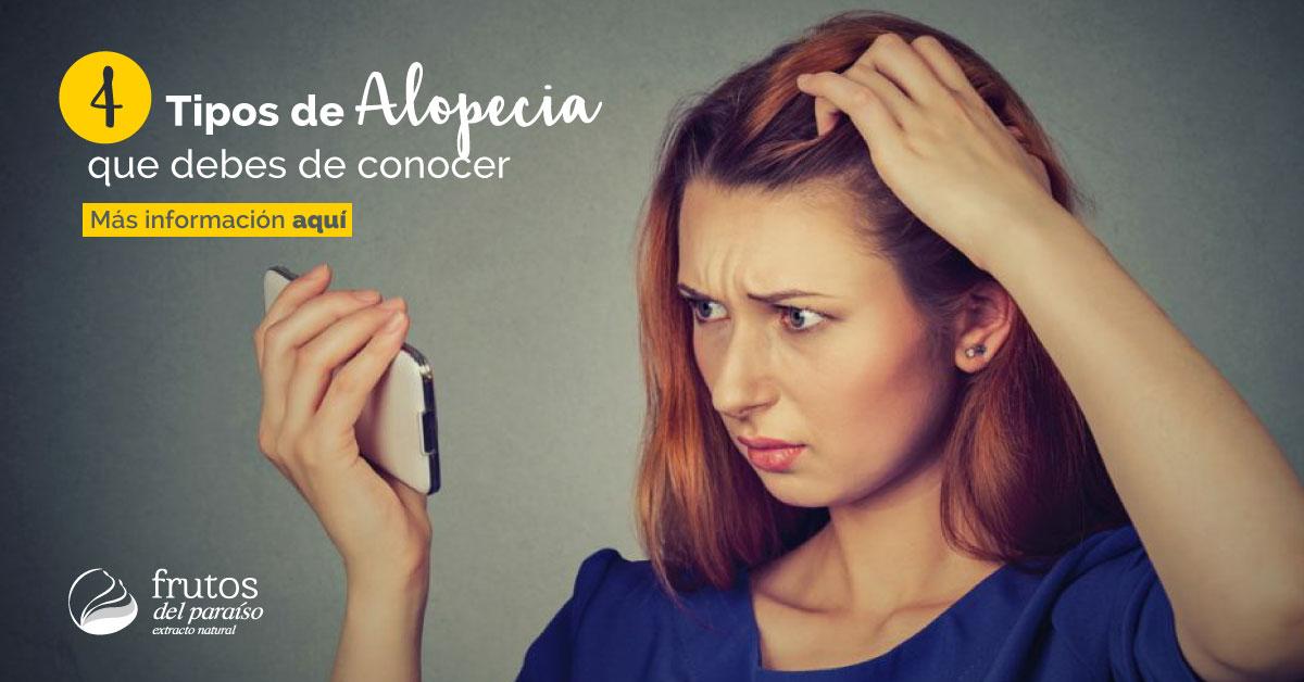 Diferentes Tipos de Alopecia - Frutos del Paraíso
