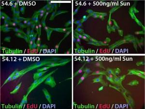 Sunitinib improves the pathogenic phenotype of FSHD myoblasts
