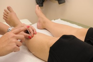 Acupuncture is another example of traditional Chinese medicine that can help you recover from workouts!