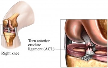 ACL tears can be helped with various types of exercises.