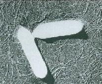 写真:ボツリヌス菌