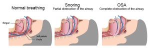 Sleep Apnea Risks Los Angeles Redondo Beach South Bay CA