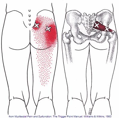 Bildresultat för piriformis syndrome