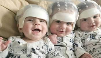 Τρίδυμα μωρά έγραψαν ιστορία όταν υποβλήθηκαν σε λεπτή χειρουργική επέμβαση  λόγω σπάνιας γενετικής πάθησης και βγήκαν 3be305c8cb0