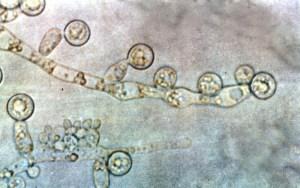 #162: <em>Candida albicans</em>