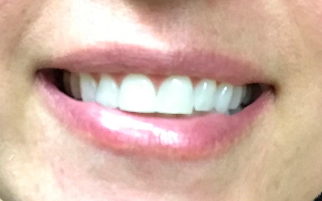 White Teeth on a $5 Budget!