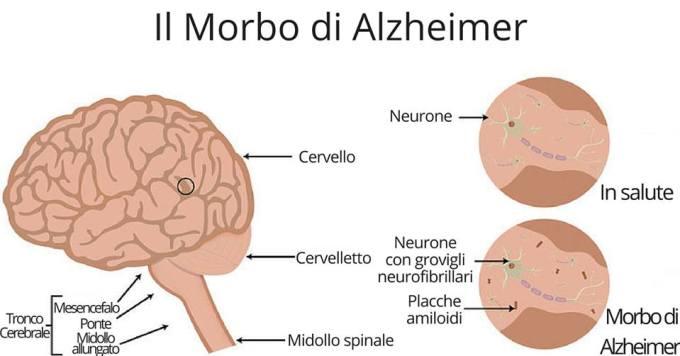 morbo-alzheimer