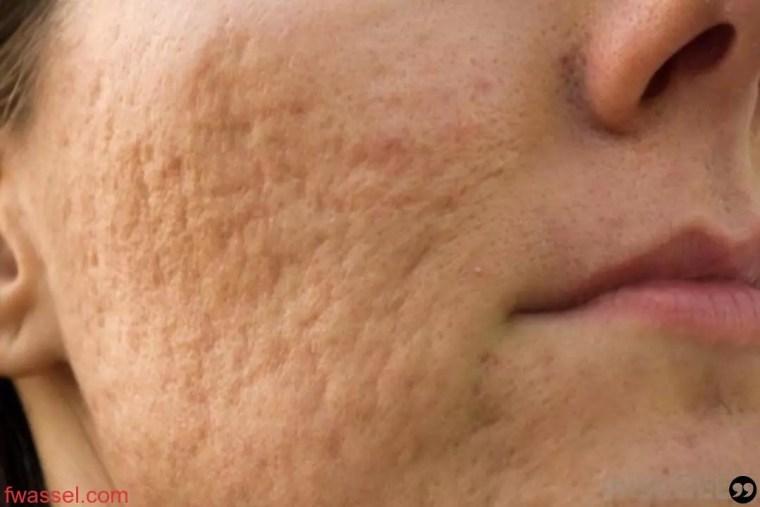 أسباب حفر الوجه وآثار الحبوب وطرق علاجها