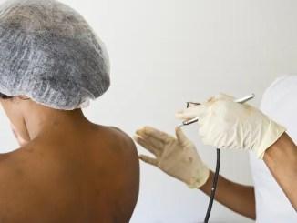 manchas en la piel « Laser, peelings y vitamina A. Consejos de dermatólogos para las manchas en la piel