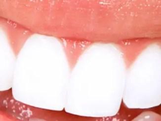 dientes mas blancos