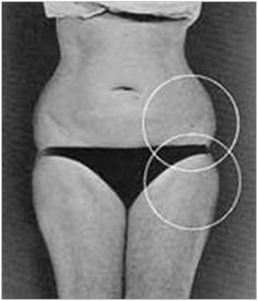 Forma corporala 8