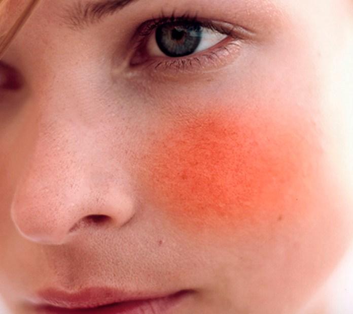 Resultado de imagem para pele vermelha sensivel