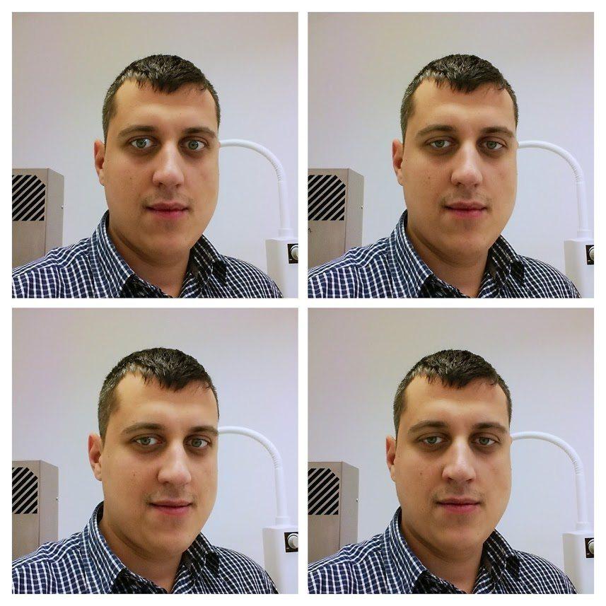 Gabriel Ursan la aBeauty clinique