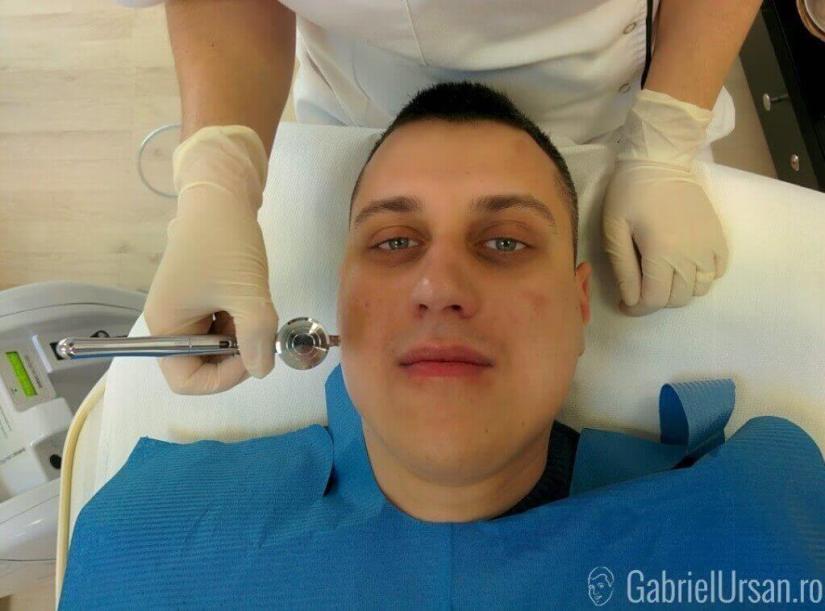 La inceputul tratamentului Intraceuticals