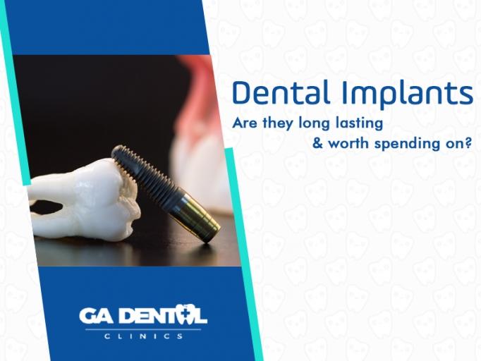 Dental Implants Durable