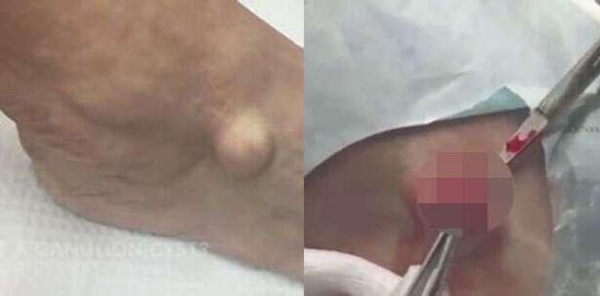 Vídeo nojento mostra momento em que dermatologista remove cirurgicamente um inchaço no pé de paciente