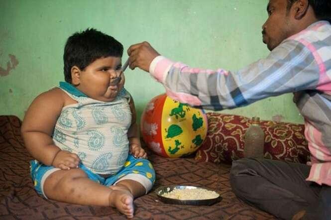 Bebê de 1 ano com obesidade mórbida confunde médicos por não parar de engordar