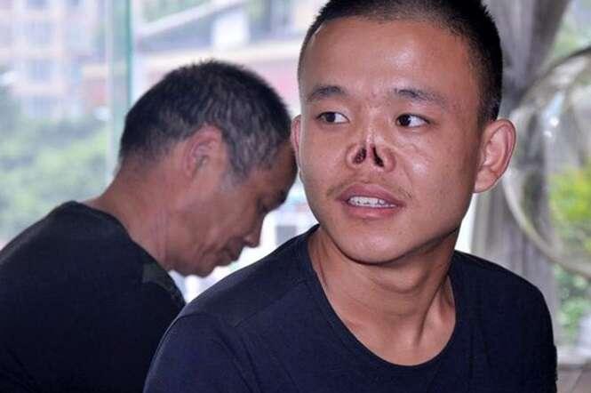 Homem abandonado pelos pais após nascer sem nariz, ganha cirurgia para construir seu rosto