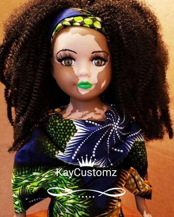 Artista cria bonecas com vitiligo para crianças que possuem essa rara condição de pele
