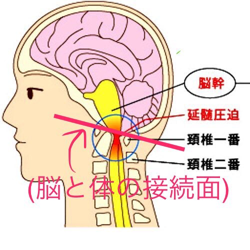 脳と体の接続を正せ!