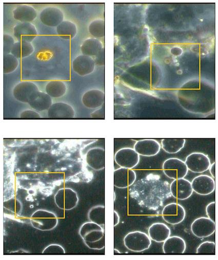 microscopia-campo-oscuro