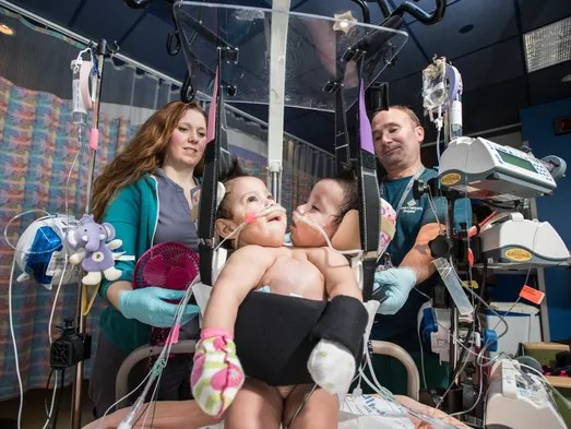 Conjoined twins separated in 26-hour operation