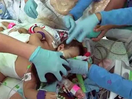 Mata conjoined twins take first step towards separation at ...