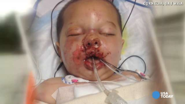 Toddler hit by flash grenade in medically induced coma