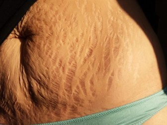 Image result for stretch marks