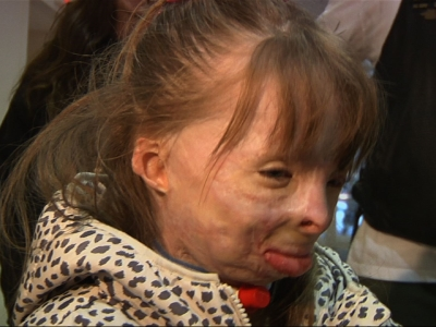 8 Year Old Burn Victim Surprised With A Trip To Disney