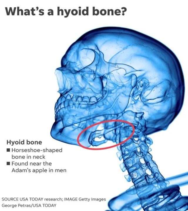 ab9e96a6-cd67-4dd7-b12c-312800439d9e-081519-Hyoid-Bone.V2 What can a tiny bone tell us about Jeffrey Epstein's death?