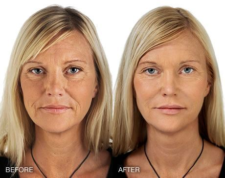 hyaluronic acid fillers before and after