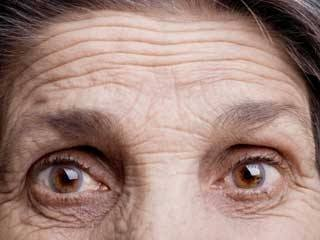 Sugar causes glycation which shows up as wrinkles