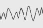Alpha Brainwave Frequencies