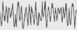 Gamma Brainwave Frequency
