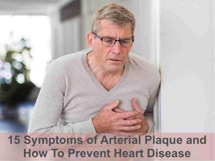 symptoms of arterial plaque