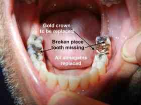 dental mercury amalgams