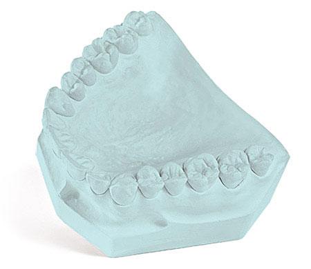 Garreco Labstone Blue Dental Model