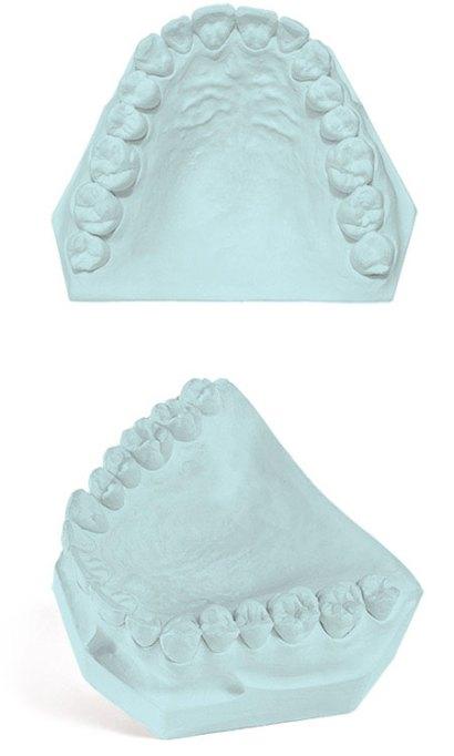 Labstone Dental Gypsum